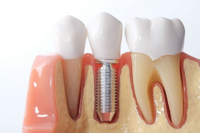 The Reason to Consider Dental Implants